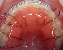 removable-retainer