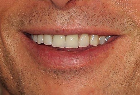 brad_pitt_smile