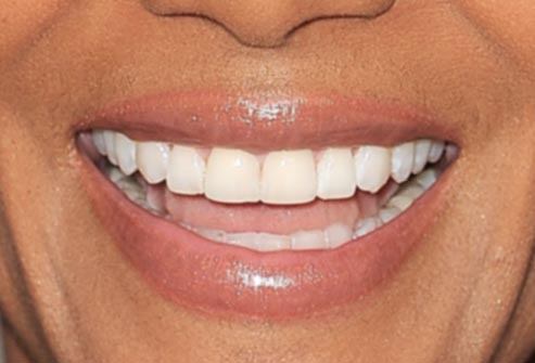halle_berry_smile
