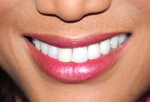 tyra_banks_smile