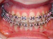 care-of-braces